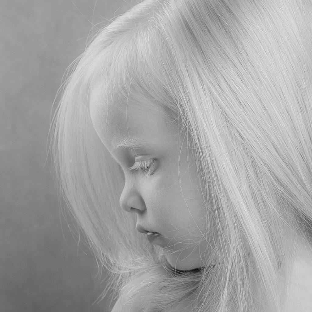 Zahra has albinism